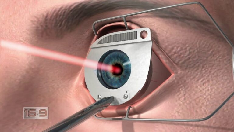 Eye Laser Surgery Treatment – What you ought to Know